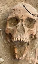 Schedel van waarschijnlijk een slaafgemaakte man, zoals aangetroffen op een slavenbegraafplaats op Sint Eustatius.