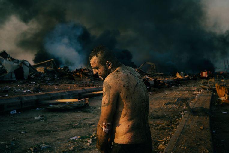 Een op het eerste gezicht sterke man met een Jezus-tattoo is zwaar gehavend door de explosie in de haven van de Libanese hoofdstad Beiroet. Zeker 7.500 anderen raakten gewond. (Lorenzo Tugnoli) Beeld Photo by Lorenzo Tugnoli/ Contra