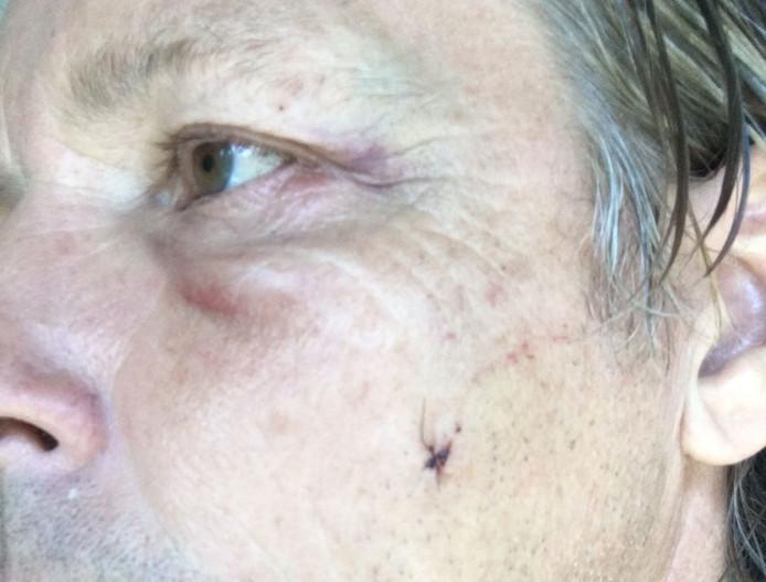 Wim brak zijn oogkas, zijn jukbeen en zijn bovenkaak