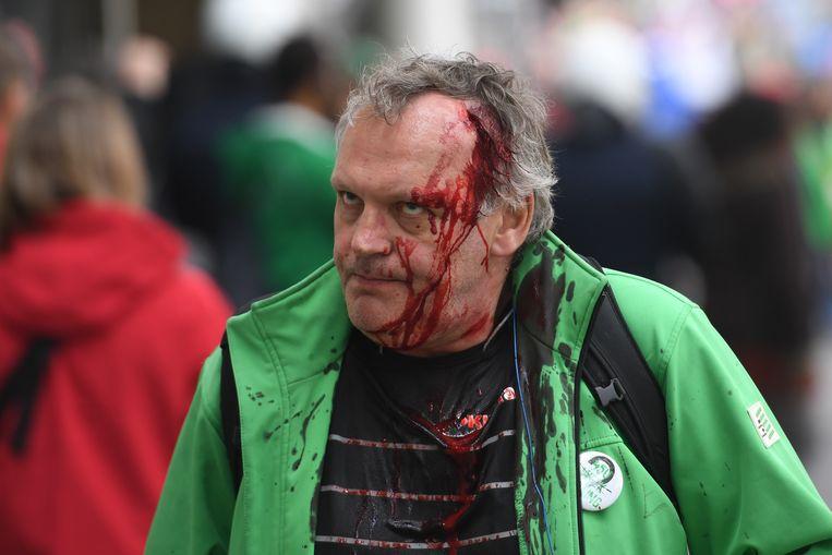 Ook een betoger van de christelijke vakbond raakte gewond. Beeld BELGA