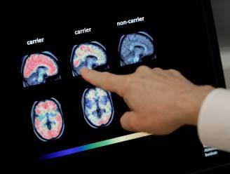 Spectaculaire doorbraak in alzheimeronderzoek: voor het eerst medicijn op de markt