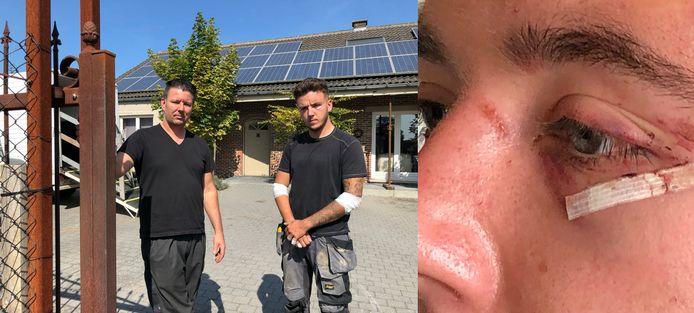 De daders forceerden het hek waarna ze vader en zoon op de oprit in elkaar sloegen.