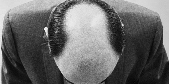 Waarom mannen kaal worden volgens een vast patroon en hoe castratie dit proces tegen kan gaan