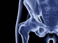 Vorm van de heup voorspelt artrose