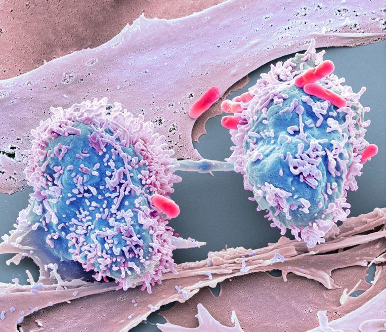 Amsterdams bedrijf haalt 78 miljoen euro op voor kankeronderzoek