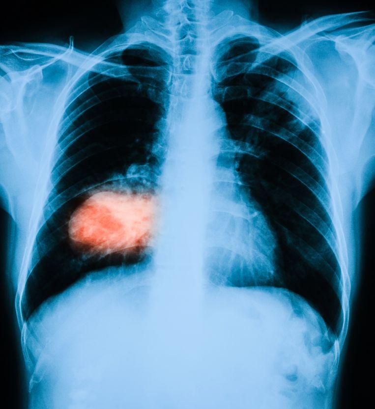Röntgenfoto van de longen, met links in het rood een longtumor.