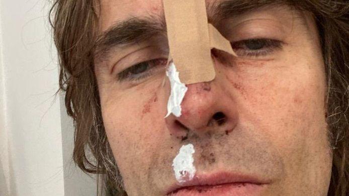 Liam Gallagher a partagé une photo de ses blessures après une chute en hélicoptère.