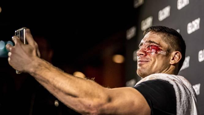 Zó zwaar takelde Ben Saddik de koning van het kickboksen toe: hilariteit wanneer gsm gehavend gezicht niet herkent