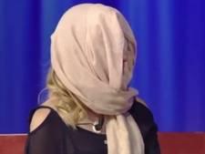 Misskandidate toont haar gezicht na zuuraanval