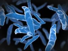 Ruim 700 inwoners Vaassen opgeroepen voor tbc-onderzoek