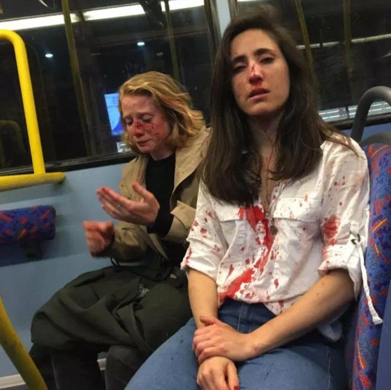 Melania Geymonat (rechts) en haar vriendin Chris werden in elkaar geslagen in een Londense stadsbus. Beeld rv