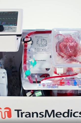 """Zelfs artsen verbazen zich over machine die hart overleden donor buiten lichaam laat kloppen: """"Verbazingwekkend"""""""