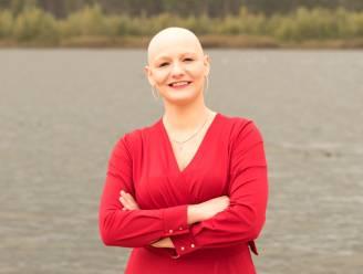 """Kerry-Lynn (27) lijdt aan alopecia en wil zich niet langer verstoppen: """"Mensen mogen me zien zoals ik echt ben"""""""