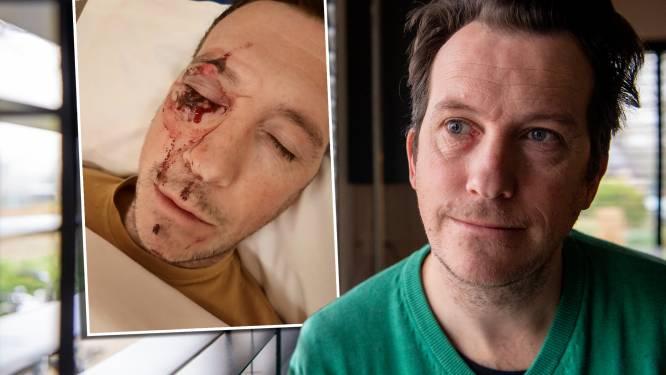 René werd bloedend op straat achtergelaten nadat hij scooterrijders aansprak, verdachte: 'Ik wilde weg'