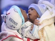 Des bébés siamois dans un état critique évacués du Yémen en Jordanie