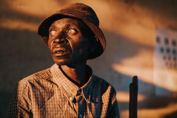 Jorgo nam het winnende kiekje tijdens zijn reis door Congo voor de opnames van 'Losing Sight', een documentaire over Congolozen die blind of slechtziend zijn geworden.