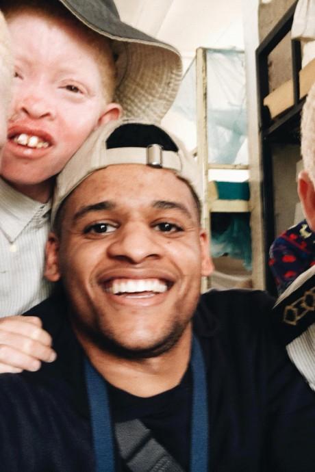 Almicheal Fraay uit Eindhoven maakte documentaire over albinisme: 'Dat dit nog kan in 2018'