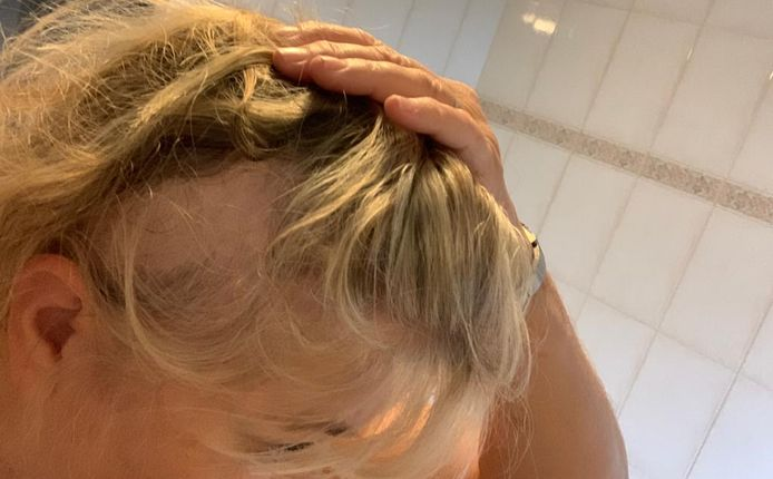 Astrid verloor in drie maanden tijd haar blonde lokken.