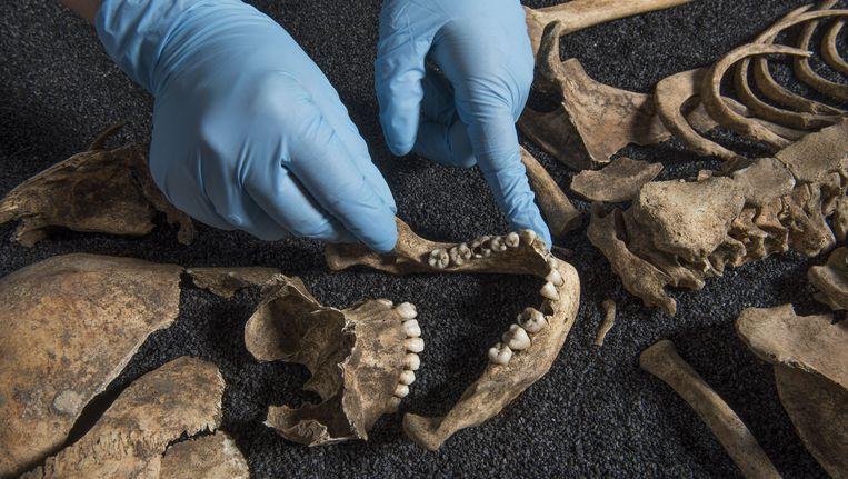 Onderzoek naar het gebit leert in welke streek de overledene zijn eerste jaren heeft doorgebracht. Beeld Museum of London