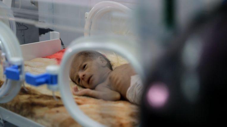ondervoede en misvormde baby in Al Joumhory ziekenhuis Hajjah Beeld Mahmoud Elsobky