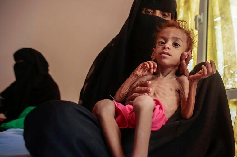 Een moeder met haar ondervoed kind in Hajjah, Jemen.  Beeld AP