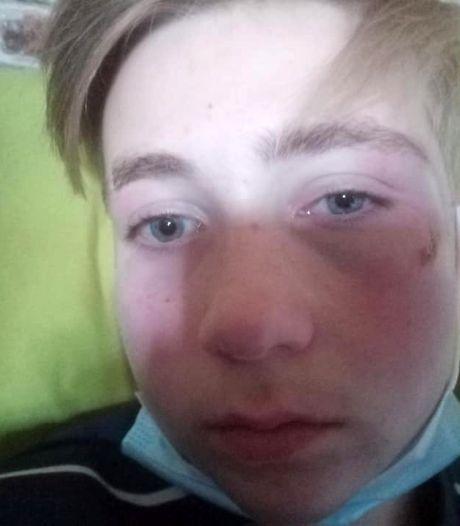 Opnieuw jonge skater (13) aangevallen aan Zuidpark