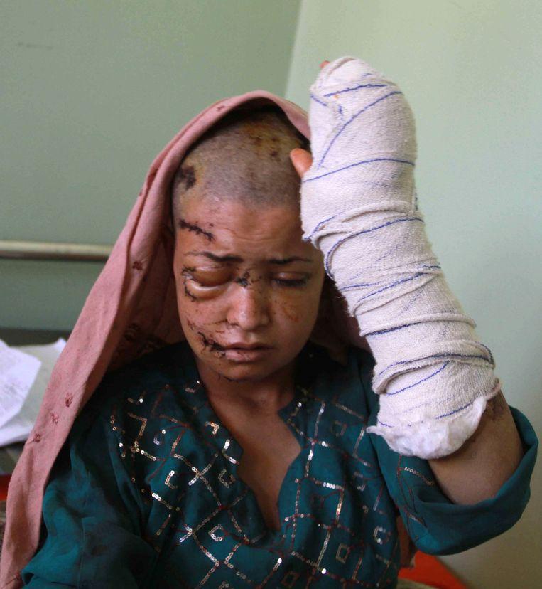 Een Afghaanse vrouw wordt behandeld in een ziekenhuis nadat ze is toegetakeld door haar man. Beeld EPA