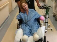 Tiffany (38) verloor haar armen  en benen na een verkoudheid
