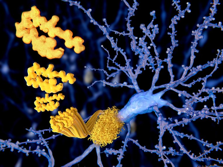Een amyloïd-eiwit, dat kan samenklonteren in de hersenen. Beeld Getty Images