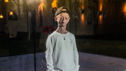 """Progeria-patiënt Michiel verliest zijn beste vriend: """"Ik ben niet bang om zelf te gaan, wel voor het verdriet dat ik dan achterlaat"""""""