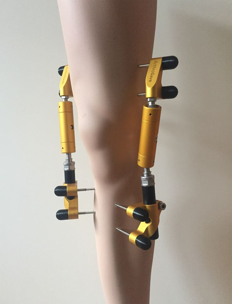 Modelbeen met de pinnen die worden bevestigd bij de kniedistractie. Beeld