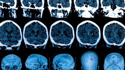 Zoveelste tegenslag: opnieuw twee studies naar Alzheimer stopgezet