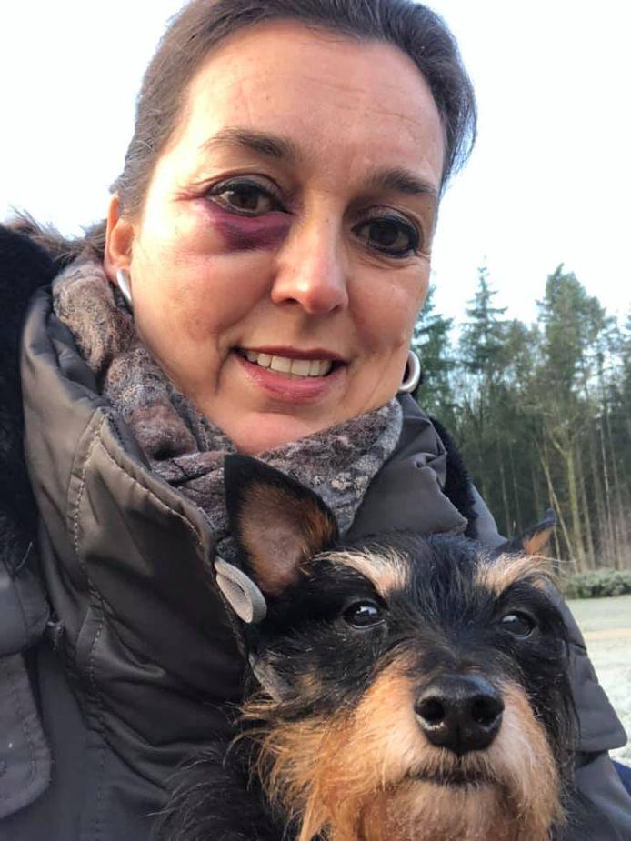 Mylou's oog raakte flink opgezwollen na de klap