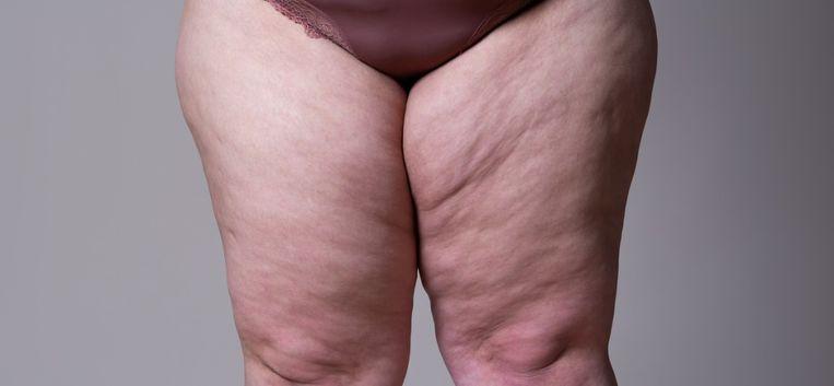 """Marije heeft lipoedeem: """"Ik dacht dat die dikke benen mijn eigen schuld waren"""""""
