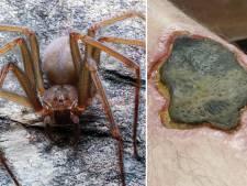 Nécrose et amputation: ne vous fiez pas à la petite taille de cette nouvelle araignée