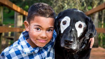 Jongen vliegt 3000 kilometer voor hond met zelfde huidaandoening