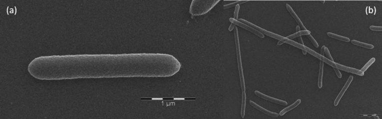 De nieuwe darmbacterie  Dysosmobacter welbionis    Beeld RV