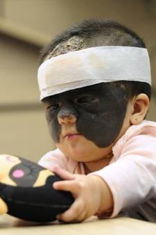 """Luna est surnommée """"bébé Batman"""" en raison d'une maladie rare de la peau"""