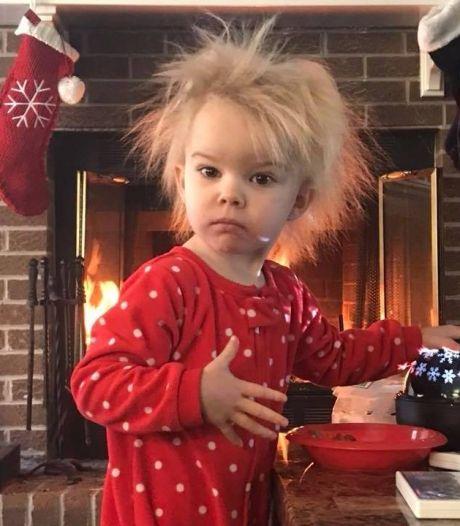 Les cheveux indomptables de cette fillette cachent une condition médicale peu connue