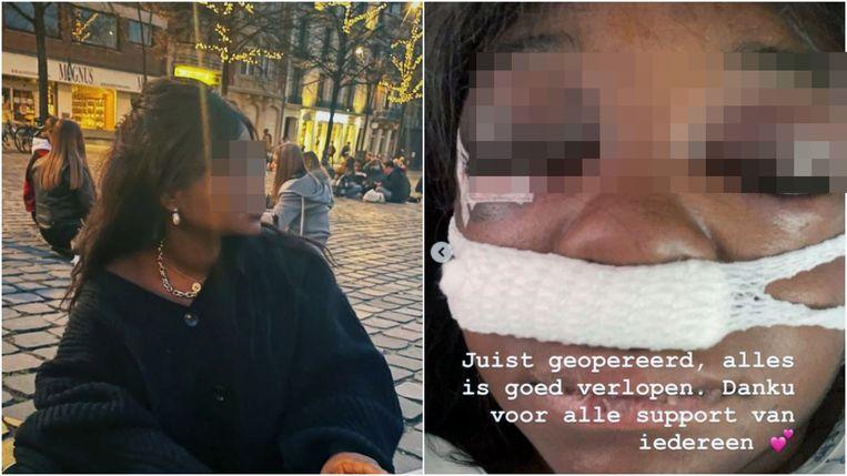 Politie Leuven reageert op aantijgingen van politiegeweld op sociale media Beeld Vertommen
