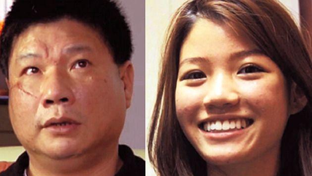 Chun Nam Hau raakte gewond aan het gezicht toen hij zijn dochter Joyce wilde verdedigen.
