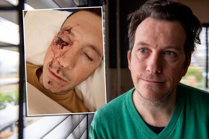 René Paquot wist drie maanden lang niet wie hem op een zondagavond in september tegen de vlakte had geslagen.