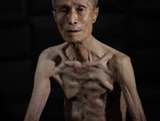 De littekens van de nucleaire oorlog: overlever toont 70 jaar na Nagasaki-bom zijn gruwelijke wonden