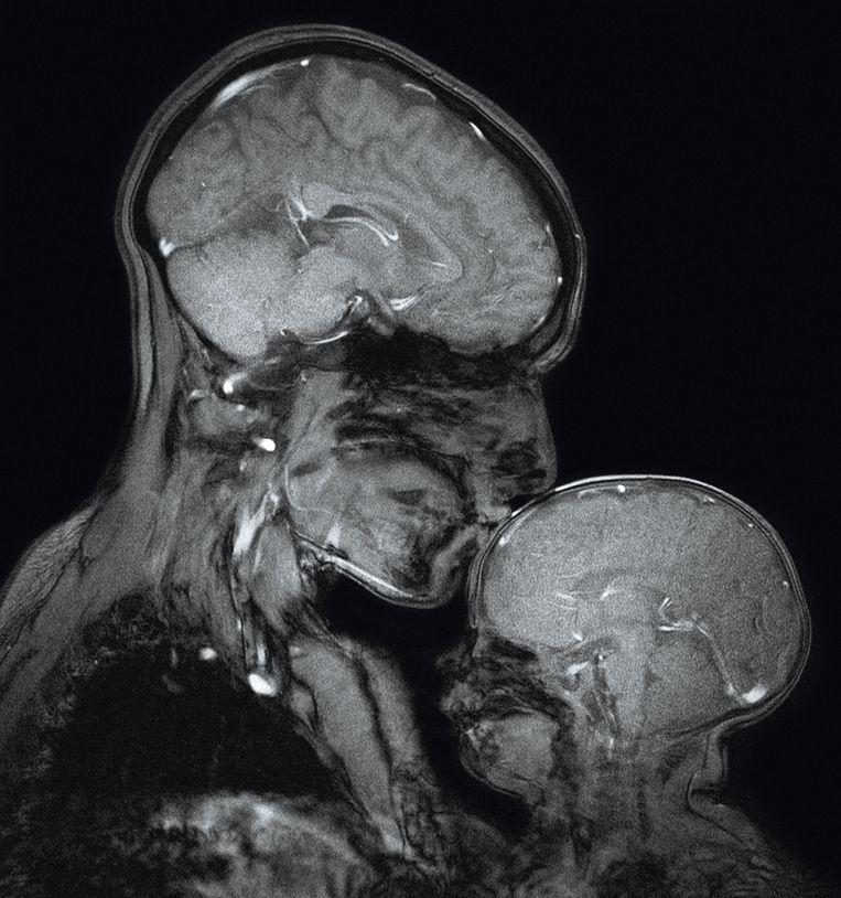 Moeder en zoon, 2015, Rebecca Daxe, McGovern Institute for Brain Research, MIT Beeld TRBEELD