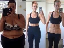 Elle perd la moitié de son poids en un an, ils ne la croient pas