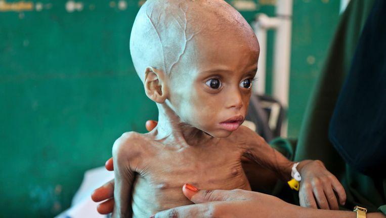 Amper negen maanden oud is dit meisje uit Somalië, en op sterven na dood. De mama van Sacdiyo Mohamed ontvluchtte de droogte in het zuiden van het land en reisde met haar dochtertje naar Mogadishu, in de hoop dat de artsen nog iets voor haar kunnen doen.