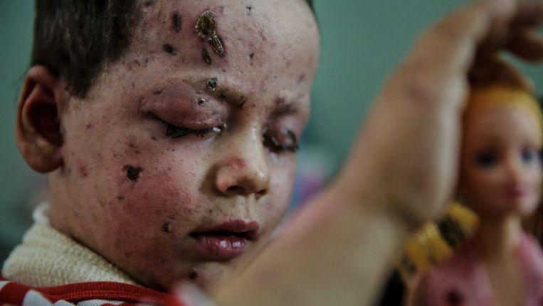 Hawra Hassan (4) raakte gewond in het gezicht en aan de voet bij de luchtaanval van de coalitie op 17 maart. Haar moeder kwam om. Beeld Photo News