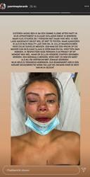 'Temptation Island'-verleidster Yasmine deelde deze schokkende beelden op Instagram.