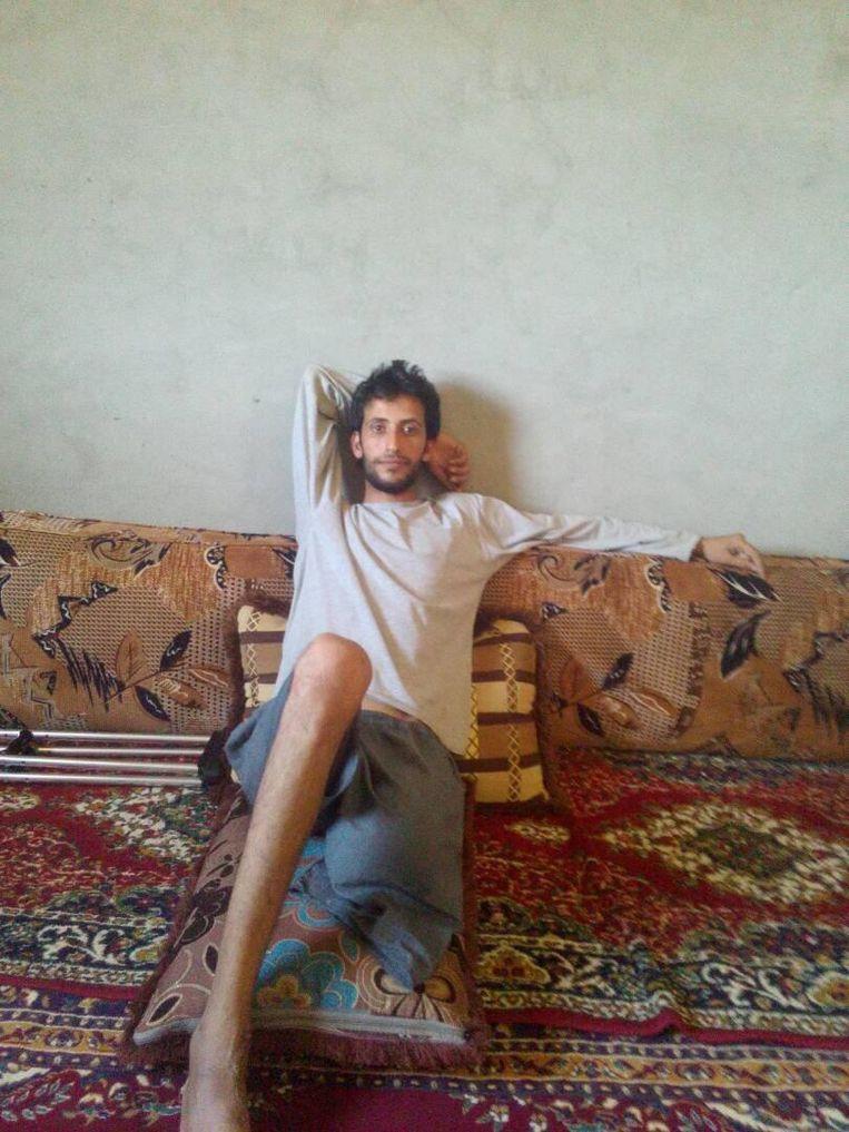 Muhammad sheikh Sa'ab verloor een been, naar eigen zeggen sinds een luchtaanval van de internationale coalitie tegen IS in de nacht van 12 op 13 mei 2017. Beeld Kamiran Sadoun
