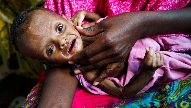 Een zwaar ondervoede baby in Somalië tijdens de hongersnood van 2011.